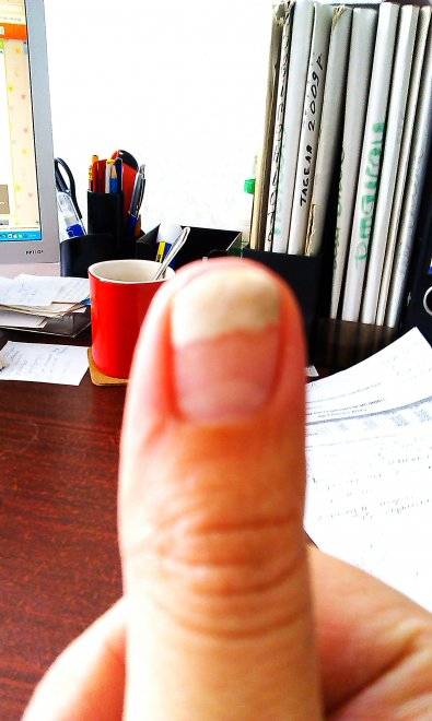 Грибок после наращивания ногтей лечение